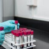 Coronavirus, il bollettino odierno: in salita i guariti (+2099), diminuiscono decessi e ricoverati in terapia intensiva
